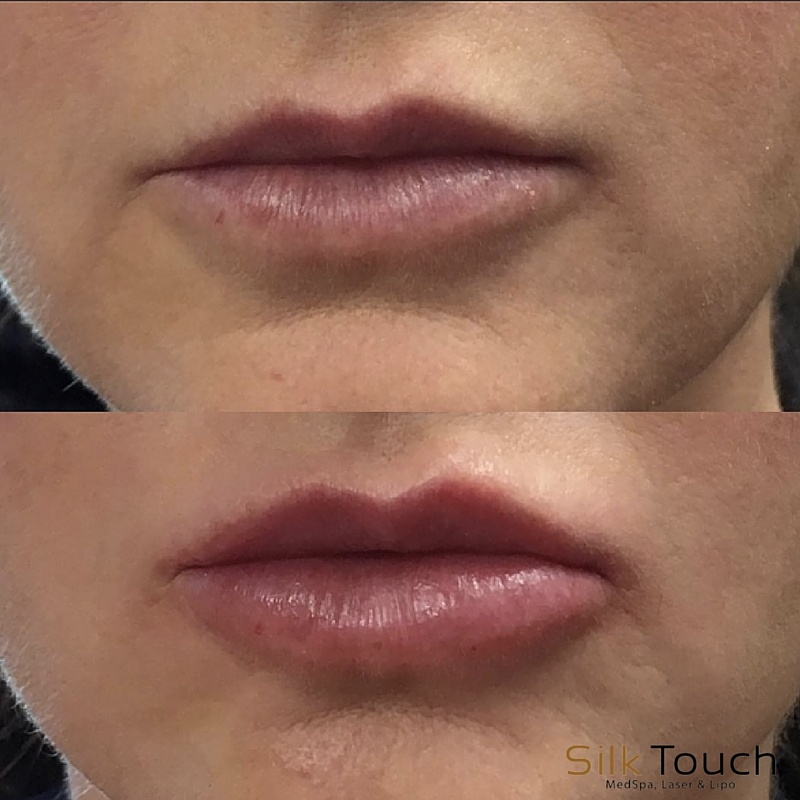 Lip_Filler_before_and_after.jpg