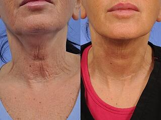 Thermi-Tight-Before-After-Neck-Closeup.jpg