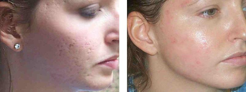 acne-scar-r-face.jpg