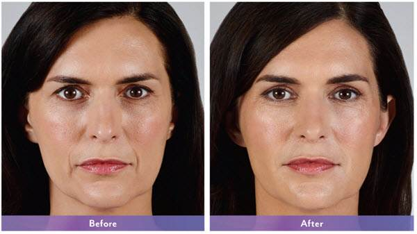 before-after-vollure-compressed.jpg