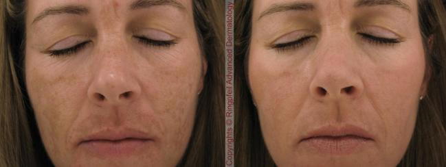 melasma-before-and-after