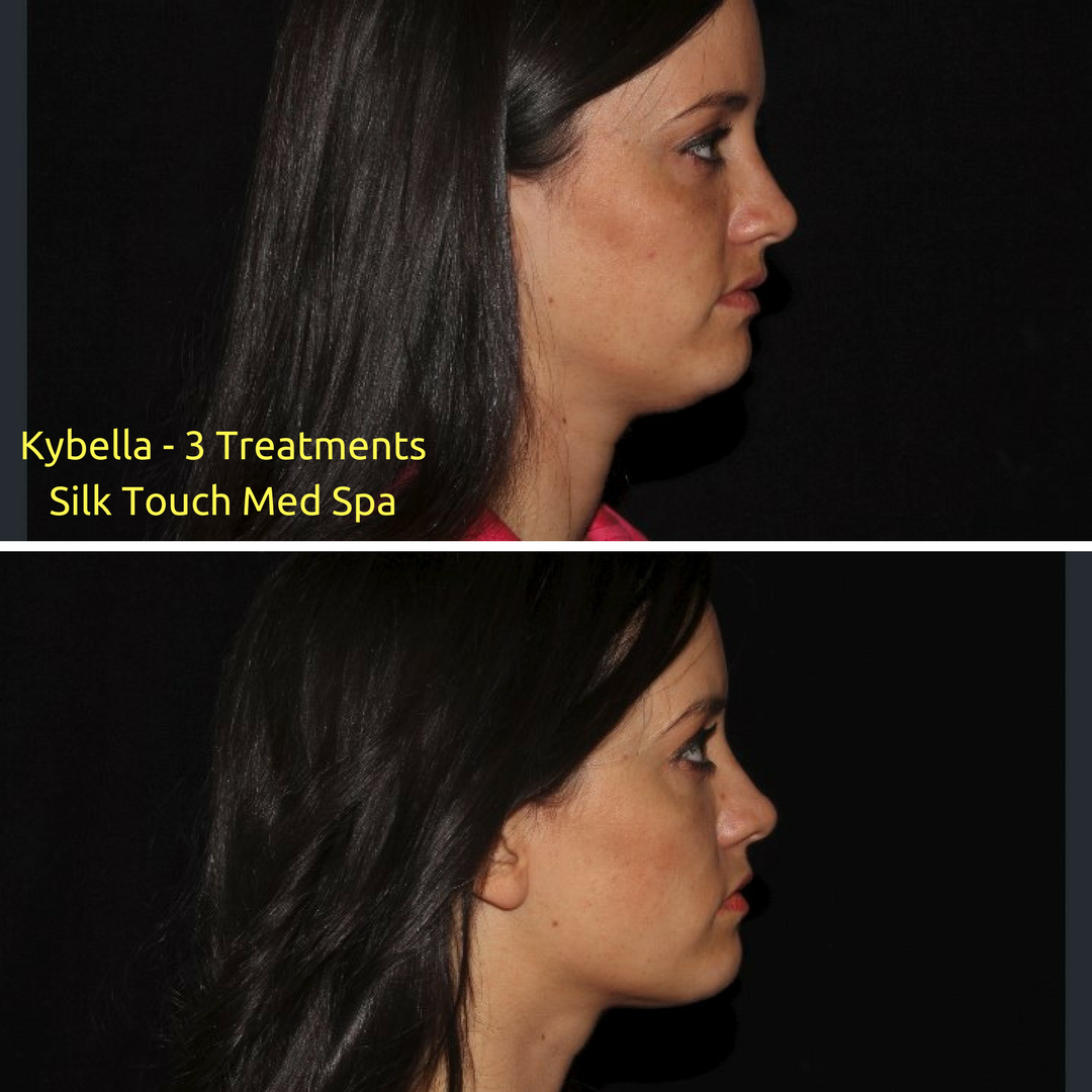How To Tell If You Are A Kybella Candidate