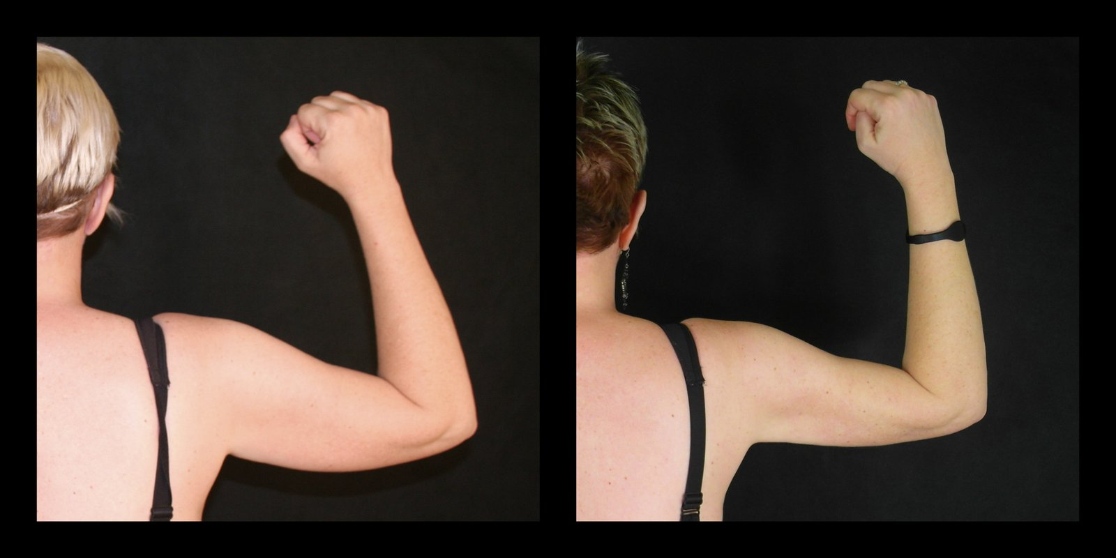 The Best Treatment for Skin Tightening on Your Arms