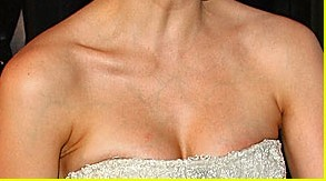 visible blue veins on chest