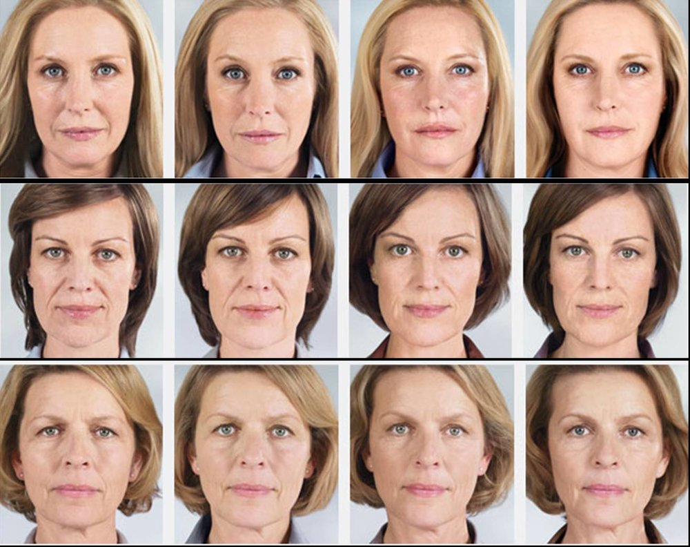 sculptra-before-and-after-big